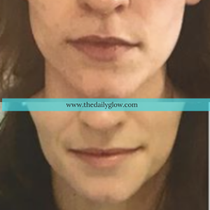 Botox and Teeth Grinding | The Daily Glow